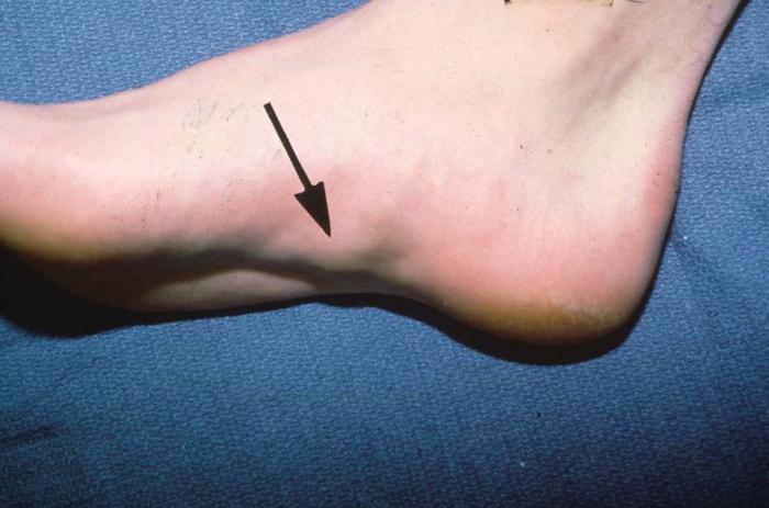 Фиброма на ногах