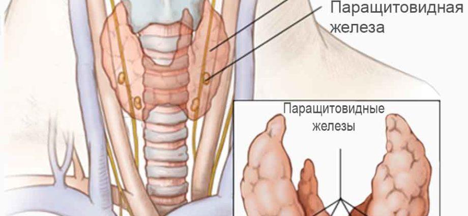 Симптомы и лечение аденомы паращитовидной железы