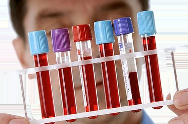 Чем понизить гемоглобин в крови в домашних условиях?