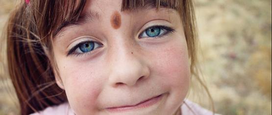 Родимое пятно на лице: можно ли избавиться навсегда?