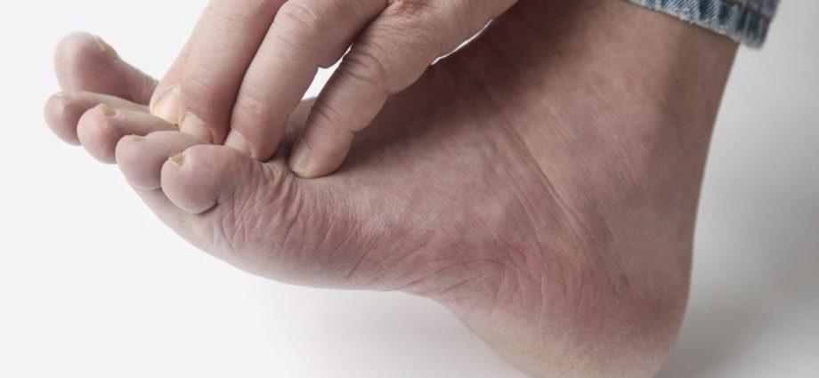Везикулярный грибок стопы: описание болезни, ее симптомы и лечение
