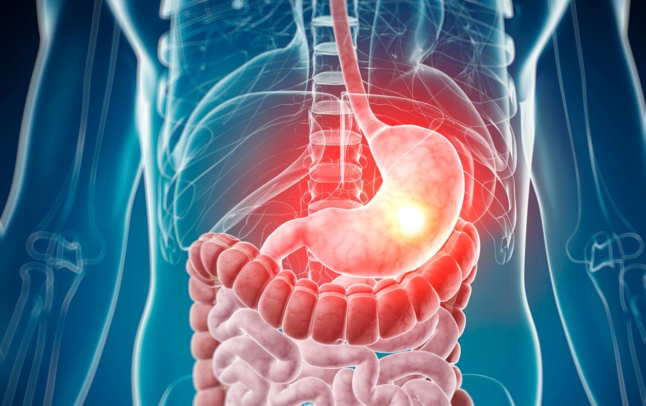 Особенности щадящей диеты при заболеваниях органов ЖКТ