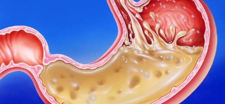 Кислотность желудка – что это за показатель и как он определяется?