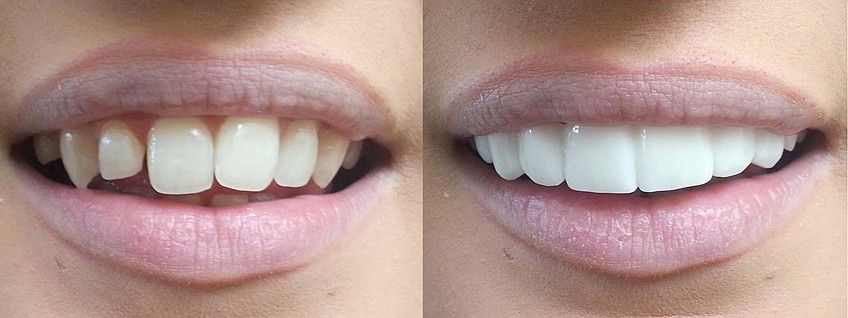 Люминиры и виниры: как выравнивать зубы