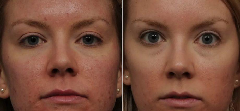 Лазерная коррекция кожи: коагуляция, эпиляция и осветление