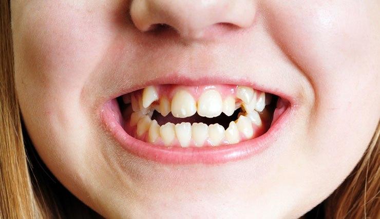 Как выбрать метод исправления кривых зубов