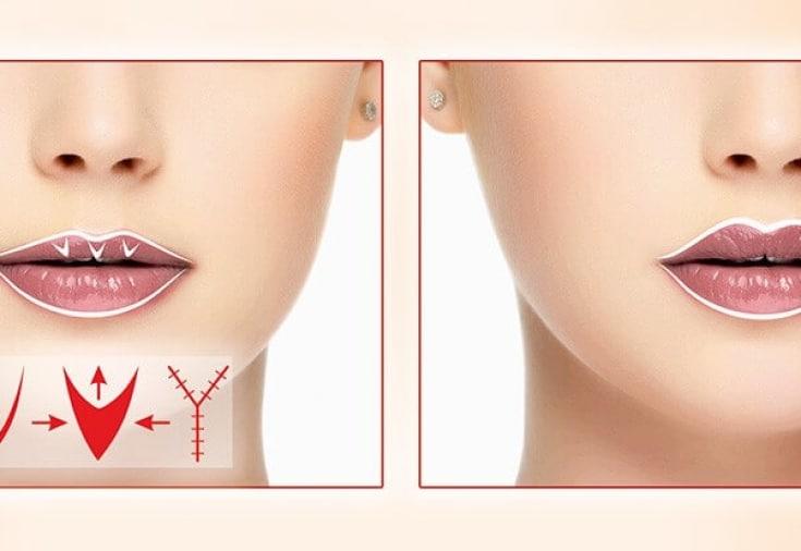 Хирургическая хейлопластика губ - показания, противопоказания, методы проведения, разновидности и результаты