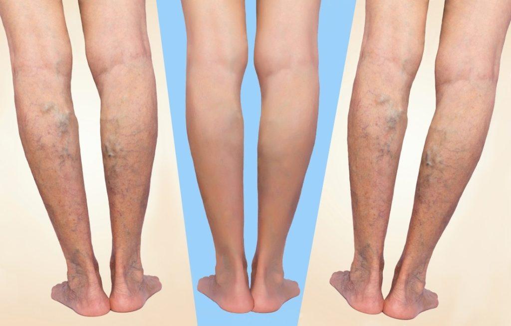 Как определить наличие тромба в ноге